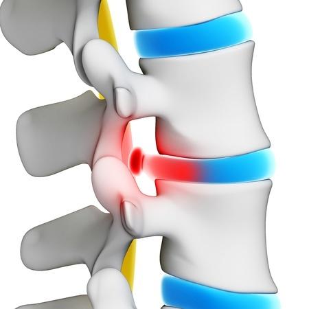 hernia uitstraling been